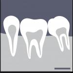radiologie_dentaire